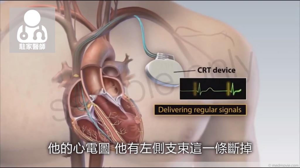 躺在床上覺得「喘」 心臟衰竭死亡率比癌症高 - 駐家醫師