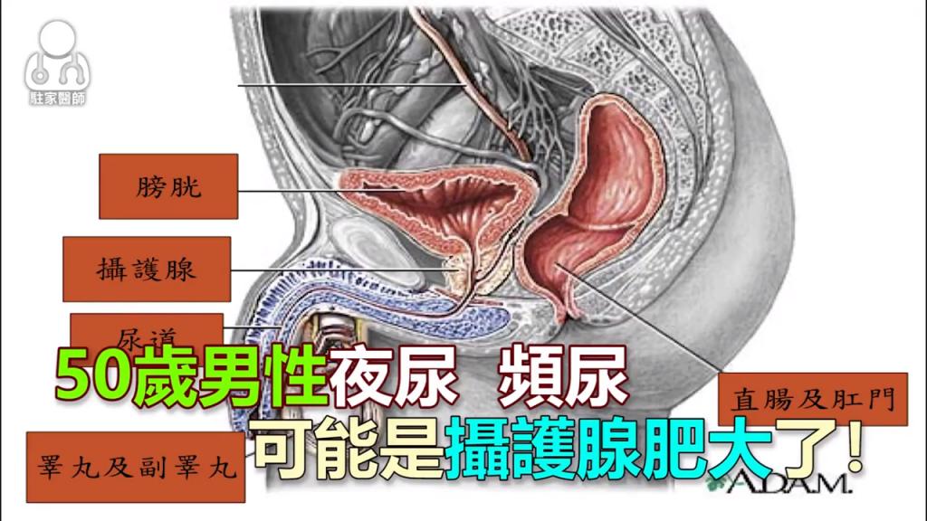 50歲男性夜尿、頻尿 可能是攝護腺肥大了! - 駐家醫師