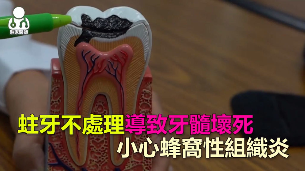 蛀牙不處理導致牙髓壞死-小心蜂窩性組織炎