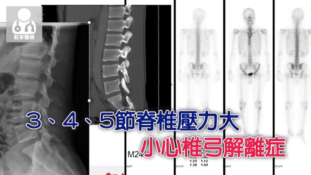 拉傷 扭傷久久未癒要留意 小心變成椎弓解離症 - 駐家醫師