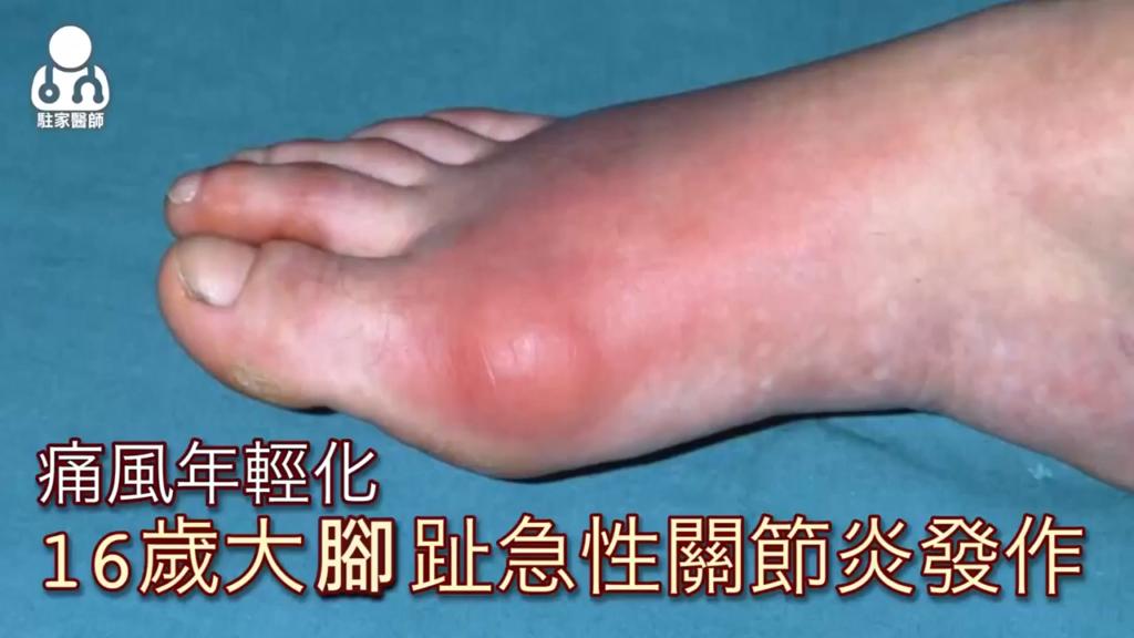 痛風不是老人病!16歲男腳趾腫如麵龜 - 駐家醫師
