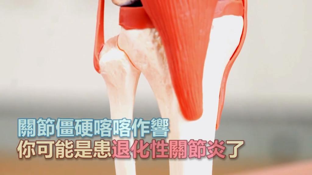 「退化性關節炎 僵、腫、痛」簡單運動帶你遠離疼痛 - 駐家醫師