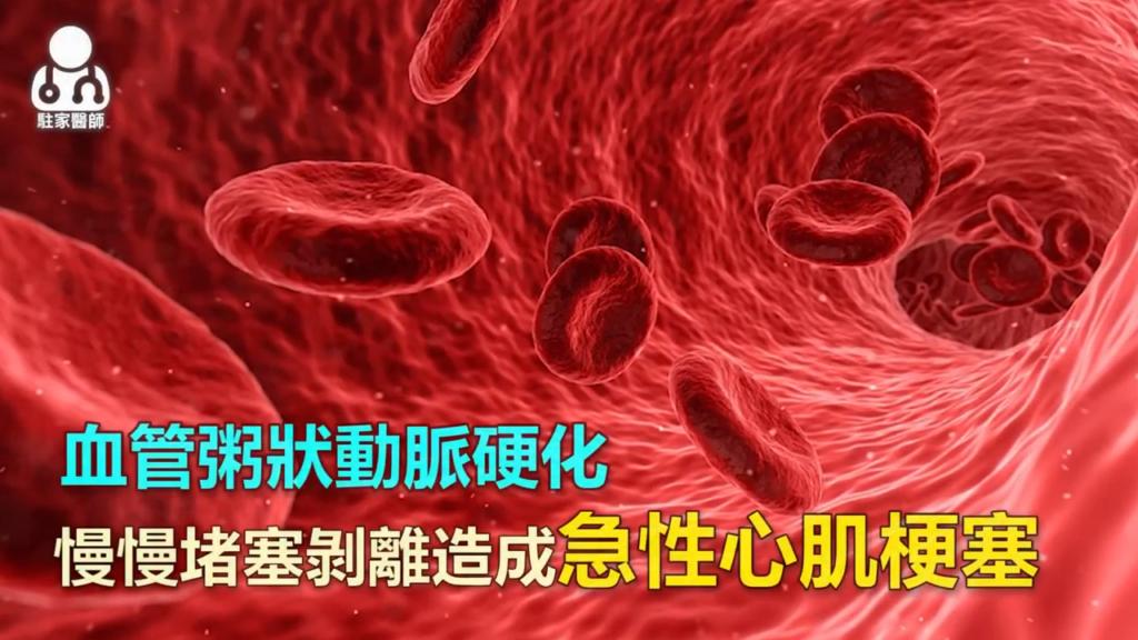 """高血脂合併高血壓 """"動脈硬化""""風險高 - 駐家醫師"""