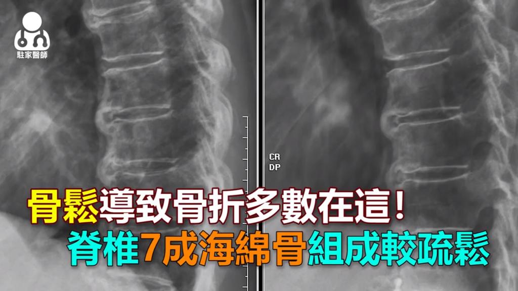 骨鬆導致骨折多數在這!脊椎7成海綿骨組成較疏鬆 - 駐家醫師