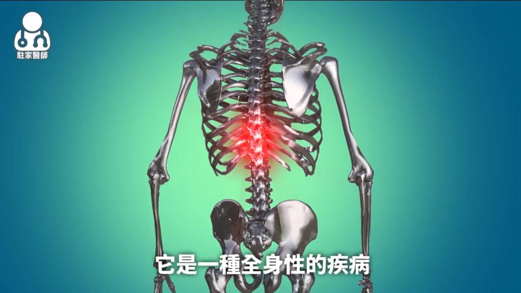 """反覆下背痛、腹痛腹瀉、乾癬發作 可能是""""脊椎關節病變""""! - 駐家醫師"""