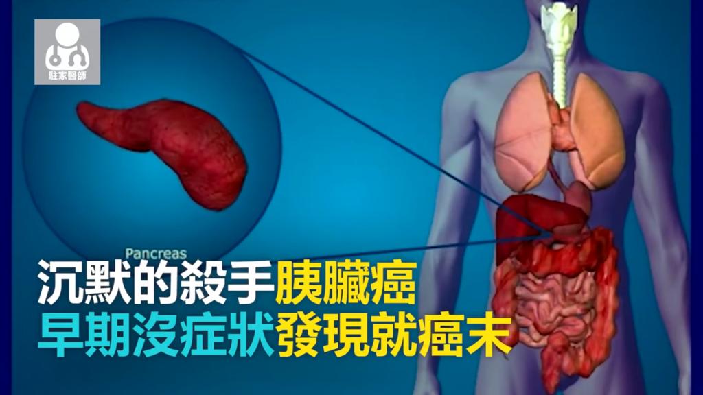 沈默殺手胰臟癌 早期沒症狀一發現就癌末 - 駐家醫師