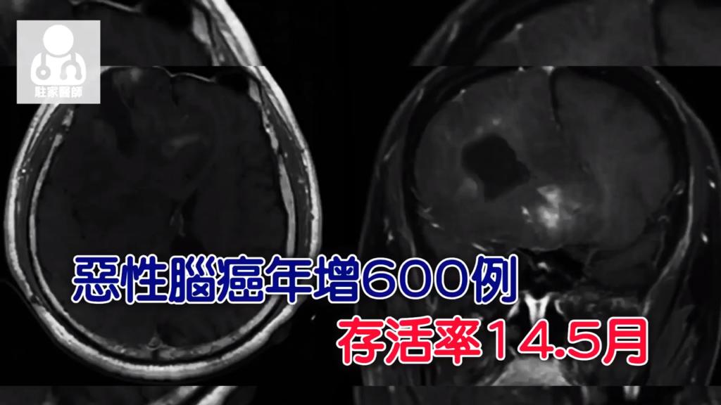 惡性腦癌年增600例 標靶治療生命再延長2年 - 駐家醫師